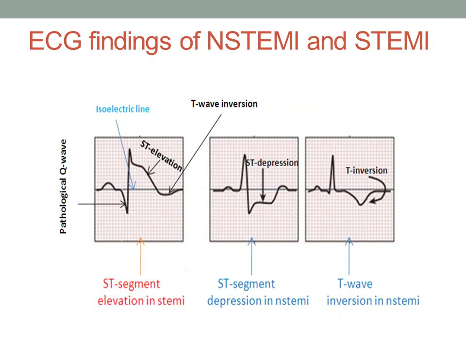 ECG findings of NSTEMI and STEMI