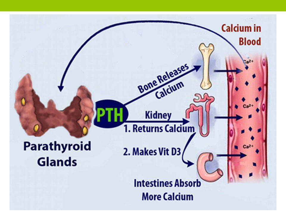 Hiperparatiroidisme sekunder Produksi hormon paratiroid yang berlebihan karena rangsangan produksi yang tidak normal Terjadi hiperplasia kompensatorik untuk mengoreksi penurunan kadar kalsium serum Terjadi penurunan kadar kalsium serum, kadar PTH tinggi, fosfat serum tinggi kemudian menurun.
