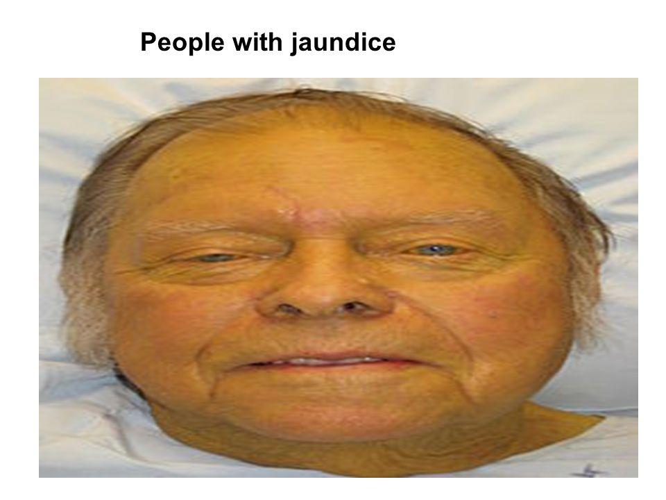 People with jaundice
