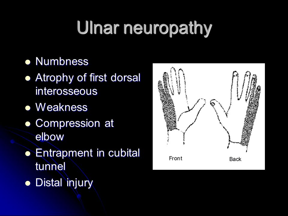 Ulnar neuropathy Numbness Numbness Atrophy of first dorsal interosseous Atrophy of first dorsal interosseous Weakness Weakness Compression at elbow Co