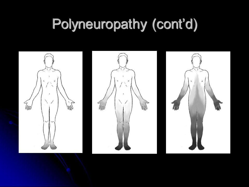 Polyneuropathy (cont'd)