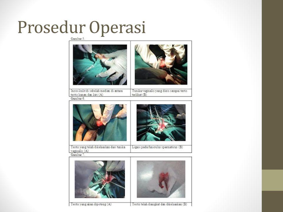 Prosedur Operasi