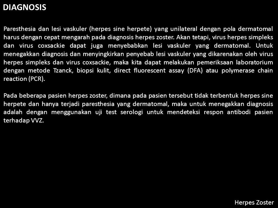Herpes Zoster DIAGNOSIS Paresthesia dan lesi vaskuler (herpes sine herpete) yang unilateral dengan pola dermatomal harus dengan cepat mengarah pada diagnosis herpes zoster.