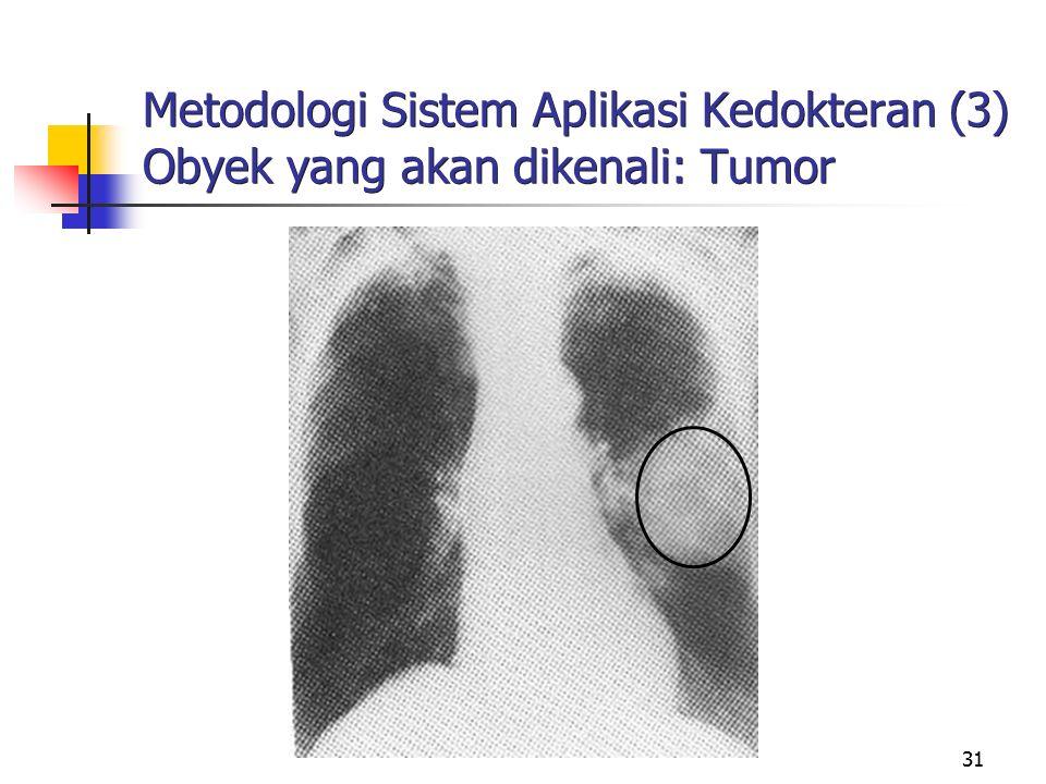 31 Metodologi Sistem Aplikasi Kedokteran (3) Obyek yang akan dikenali: Tumor