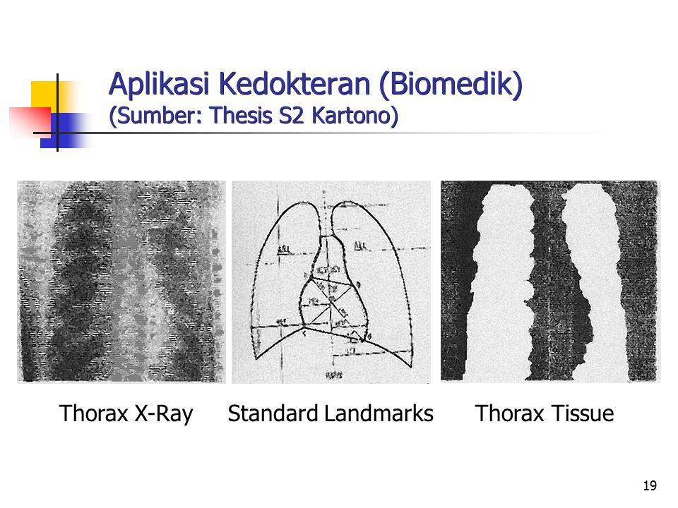 19 Aplikasi Kedokteran (Biomedik) (Sumber: Thesis S2 Kartono) Thorax X-Ray Standard Landmarks Thorax Tissue