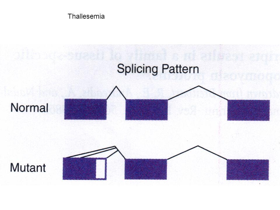 Thallesemia