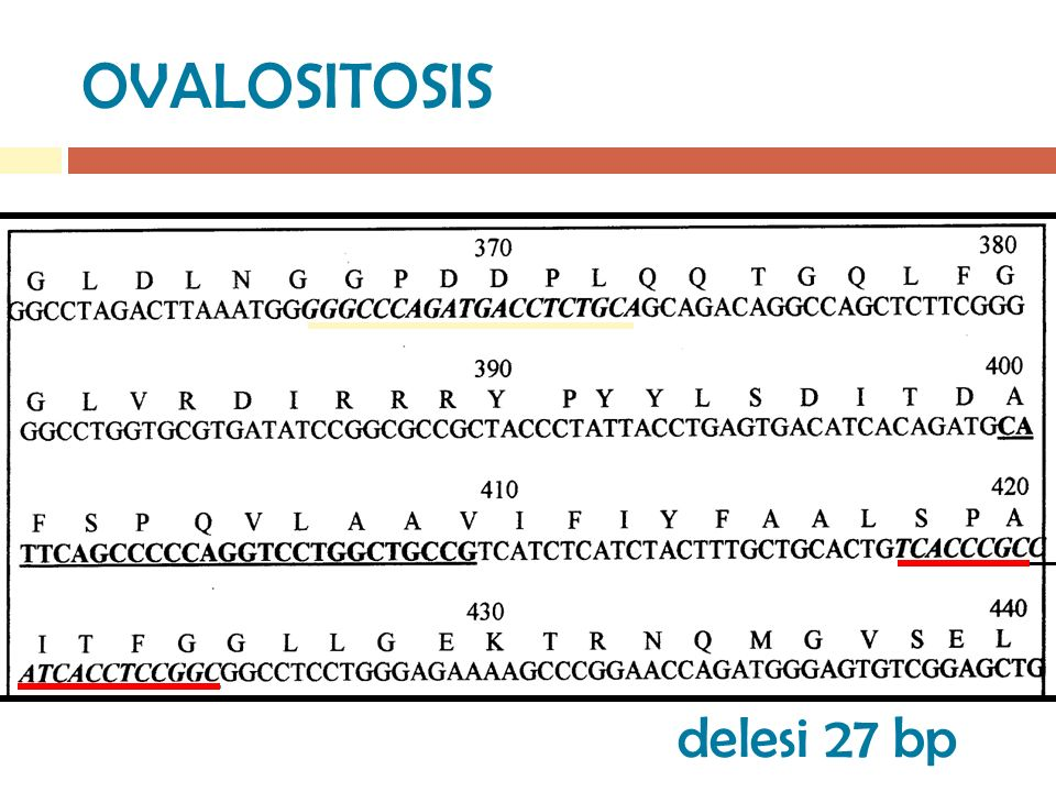 OVALOSITOSIS delesi 27 bp