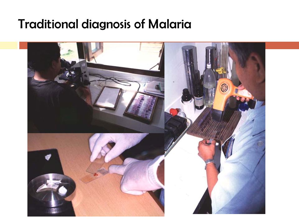 Traditional diagnosis of Malaria