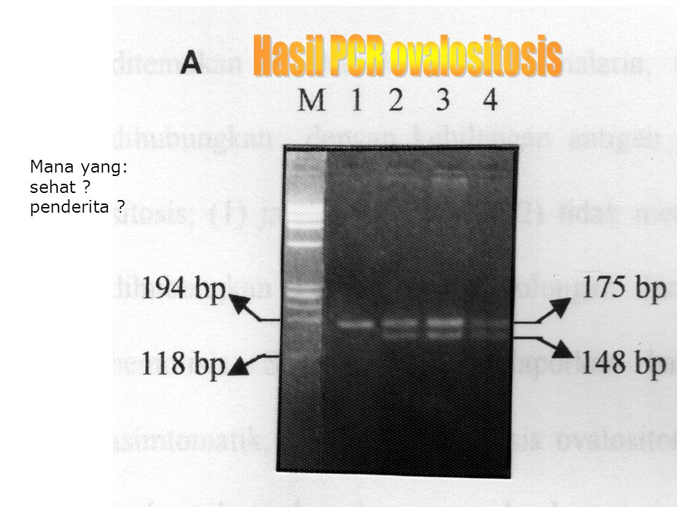 TIDAK SEMUA MUTASI PADA LOKUS RESTRIKSI  PCR/OLA  POLYMERASE CHAIN REACTION/  OLIGONUCLEOTIDE LIGATION ASSAY  MUTASI PADA 106 A:T KE G:C  TARGET DIAMPLIFIKASI –PCR  HIBRIDISASI : PELACAK X DAN Y  LIGASI
