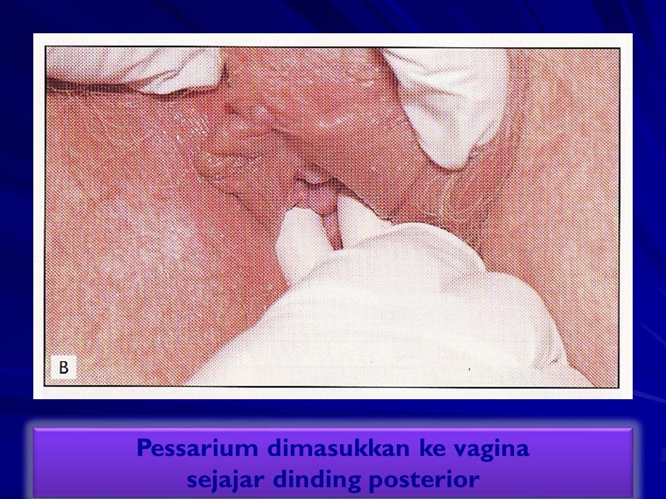 Pessarium dimasukkan ke vagina sejajar dinding posterior Pessarium dimasukkan ke vagina sejajar dinding posterior