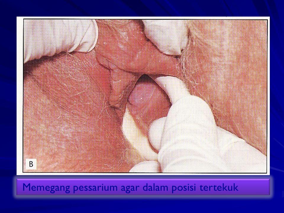 Memegang pessarium agar dalam posisi tertekuk