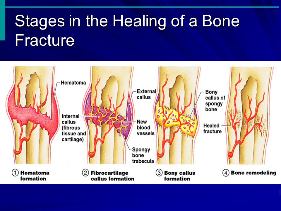 Stages in the Healing of a Bone Fracture Slide 5.19 Figure 5.5