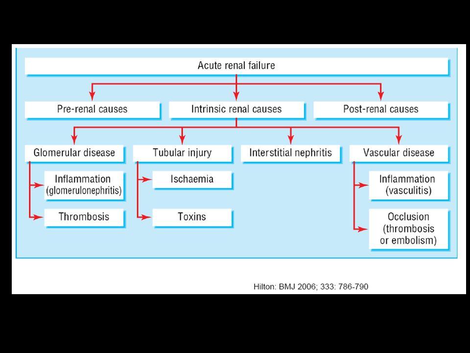 Etiology of AKI