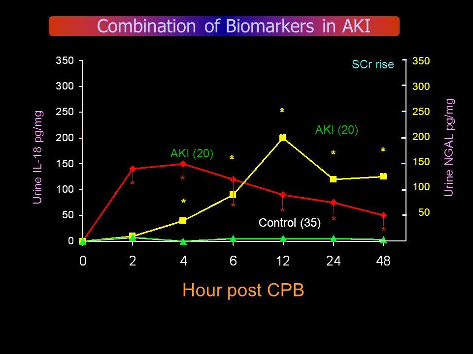 350 300 250 200 150 100 50 Urine IL-18 pg/mg Urine NGAL pg/mg SCr rise Combination of Biomarkers in AKI AKI (20) Control (35) AKI (20) Hour post CPB *