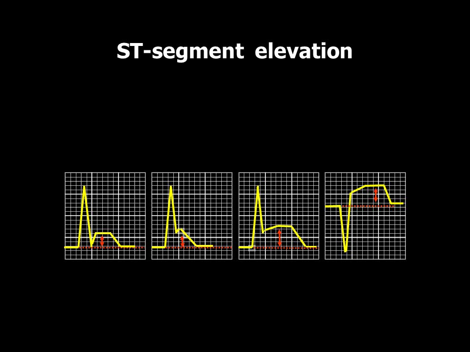 ST-segment elevation