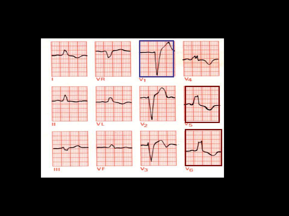 25 Gambaran EKG infark miokard akut non-Q- wave (NSTEMI) atau angina pektoris tidak stabil (UAP) : –Depresi segment ST atau gelombang T terbalik pada  2 sadapan berurutan –Inversi gelombang T minimal 1 mm pada 2 sadapan atau lebih yang berurutan.