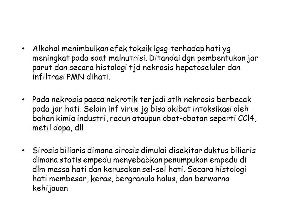Alkohol menimbulkan efek toksik lgsg terhadap hati yg meningkat pada saat malnutrisi.