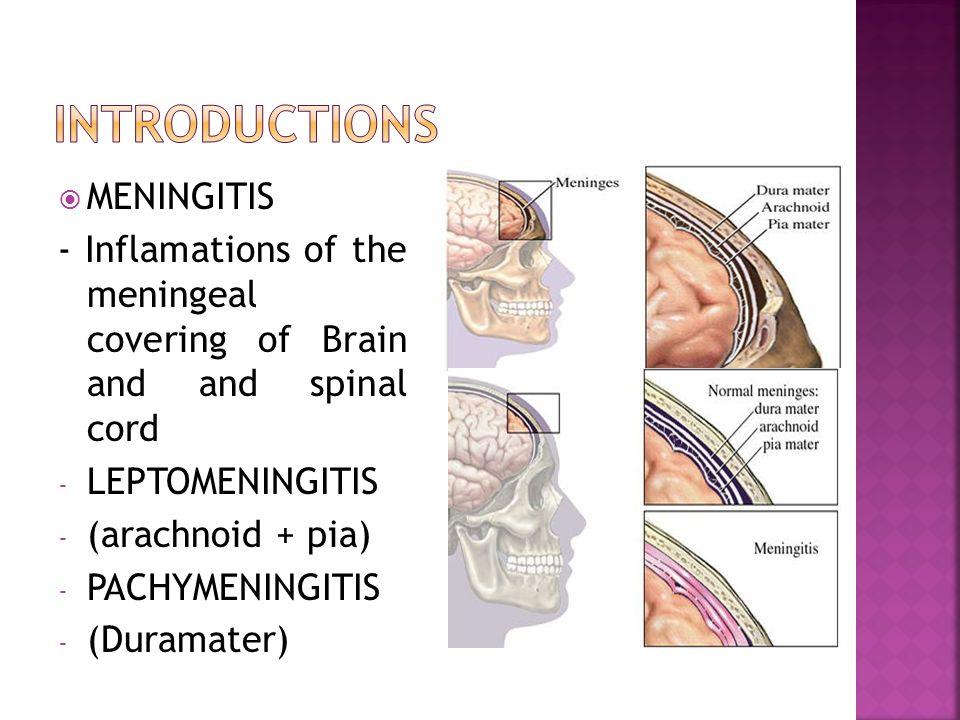  MENINGITIS - Inflamations of the meningeal covering of Brain and and spinal cord - LEPTOMENINGITIS - (arachnoid + pia) - PACHYMENINGITIS - (Duramater)