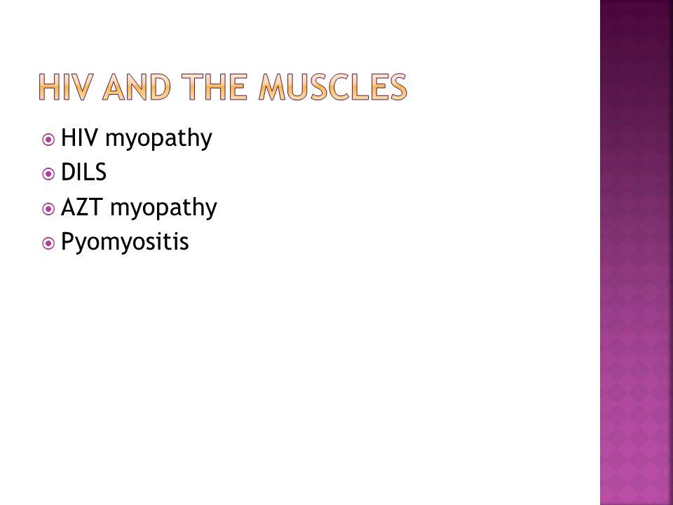  HIV myopathy  DILS  AZT myopathy  Pyomyositis