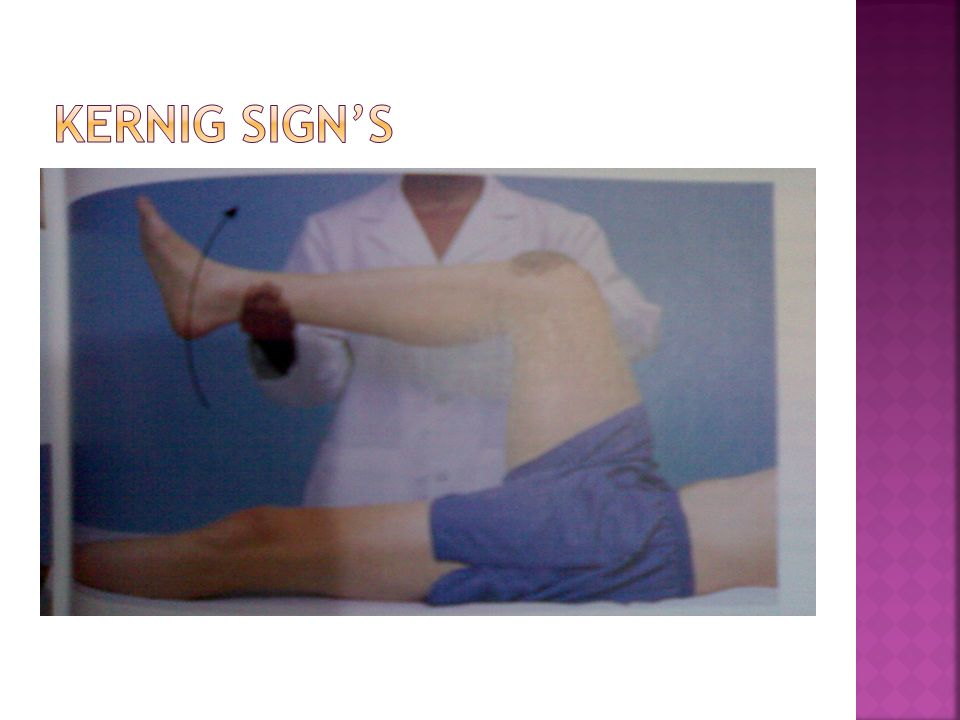 SYMTOMS / SIGNSRANGE % Focal neurological abnormality49 – 95 Fever41 – 74 Headache49 – 73 Confusion15 – 58 Seizure15 – 40