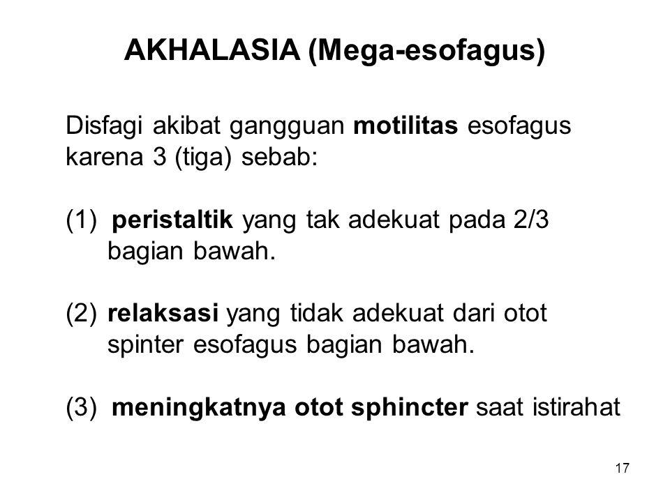 17 AKHALASIA (Mega-esofagus) Disfagi akibat gangguan motilitas esofagus karena 3 (tiga) sebab: (1) peristaltik yang tak adekuat pada 2/3 bagian bawah.