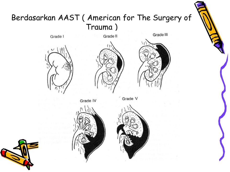 Berdasarkan AAST ( American for The Surgery of Trauma )