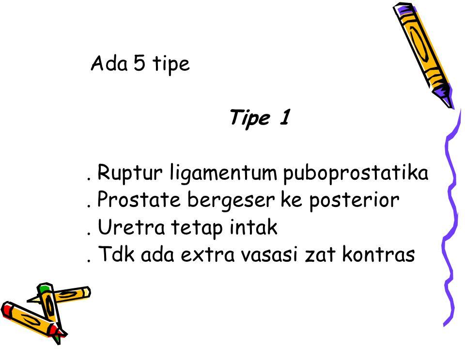 Ada 5 tipe Tipe 1. Ruptur ligamentum puboprostatika. Prostate bergeser ke posterior. Uretra tetap intak. Tdk ada extra vasasi zat kontras