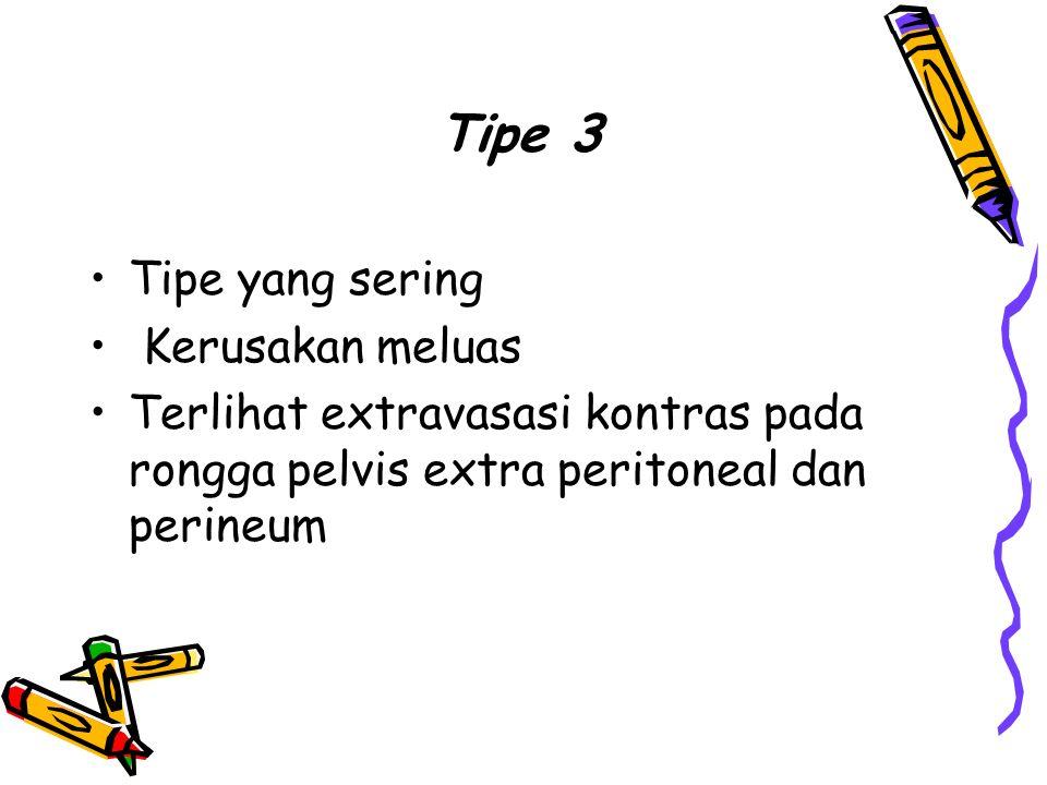 Tipe 3 Tipe yang sering Kerusakan meluas Terlihat extravasasi kontras pada rongga pelvis extra peritoneal dan perineum
