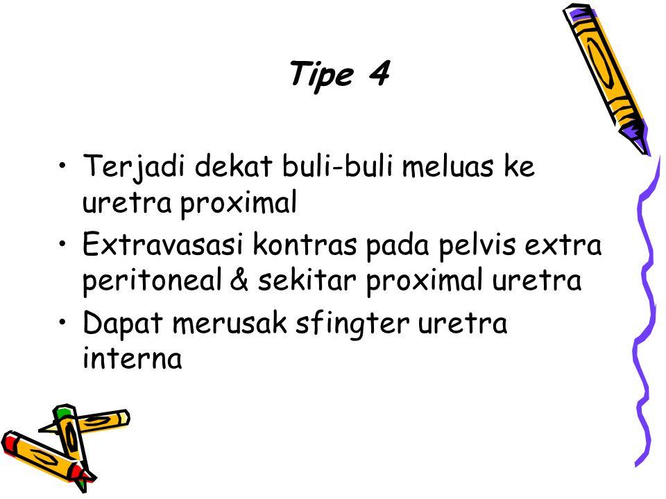 Tipe 4 Terjadi dekat buli-buli meluas ke uretra proximal Extravasasi kontras pada pelvis extra peritoneal & sekitar proximal uretra Dapat merusak sfin