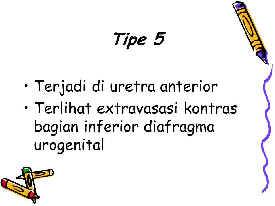 Tipe 5 Terjadi di uretra anterior Terlihat extravasasi kontras bagian inferior diafragma urogenital