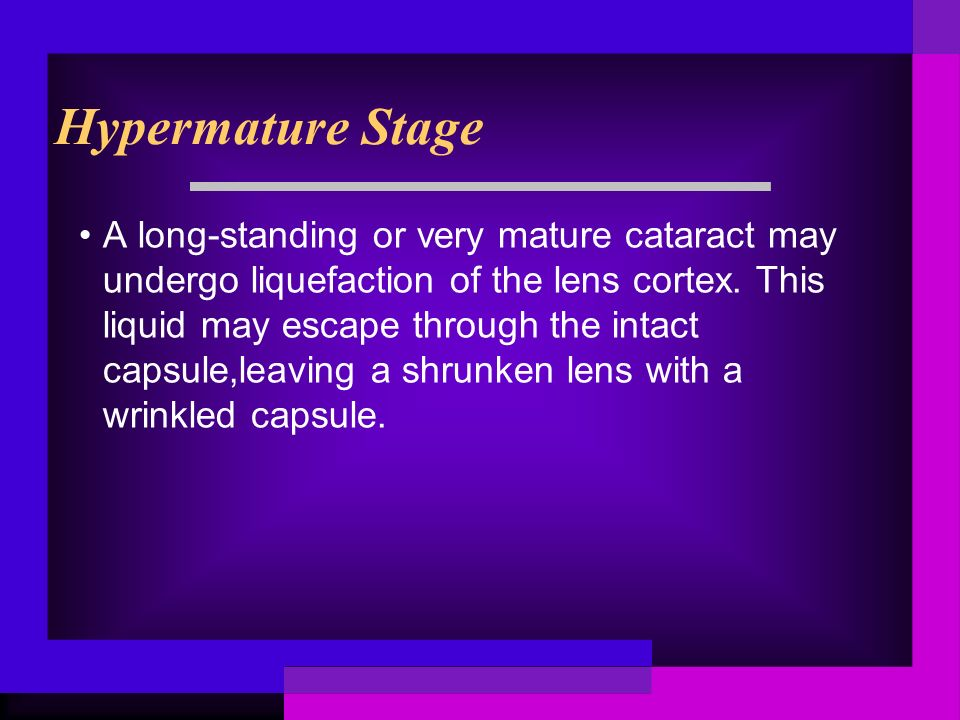 Hypermature Stage A long-standing or very mature cataract may undergo liquefaction of the lens cortex.