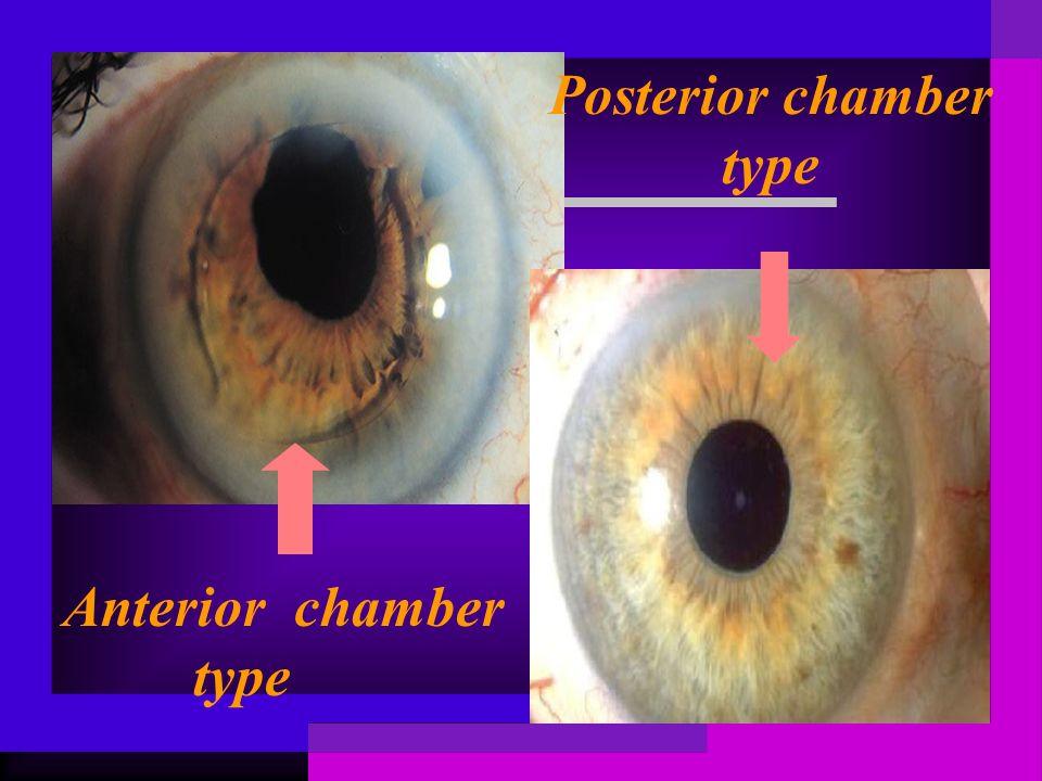 Anterior chamber type Posterior chamber type