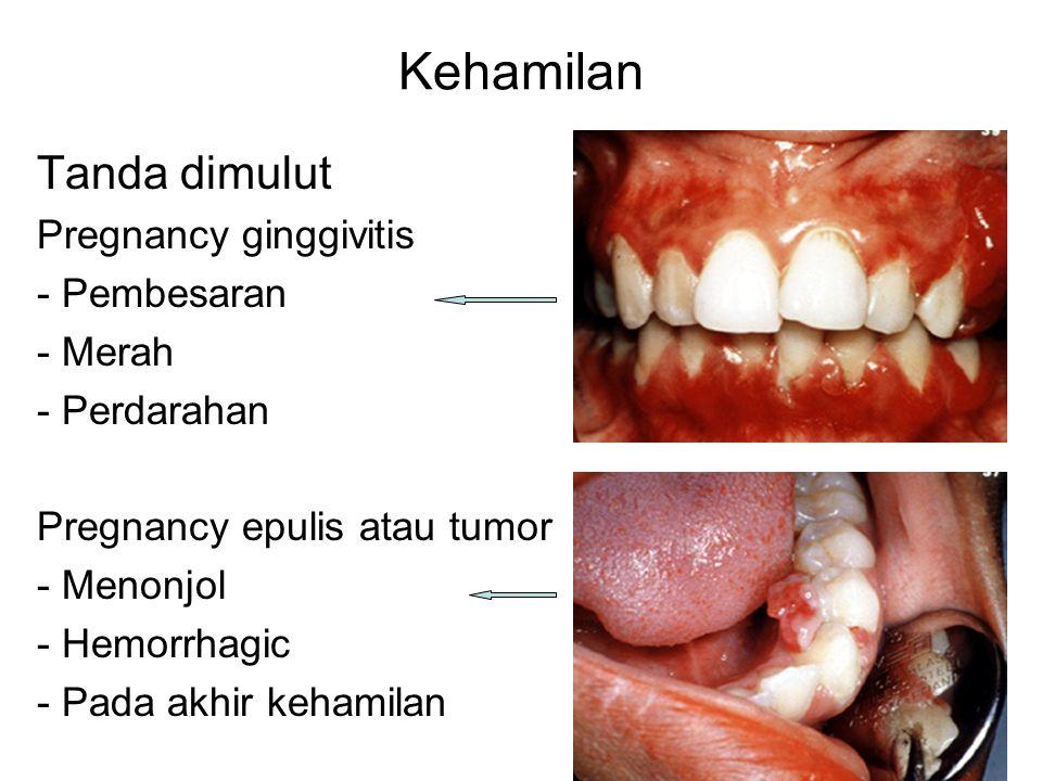 Kehamilan Tanda dimulut Pregnancy ginggivitis - Pembesaran - Merah - Perdarahan Pregnancy epulis atau tumor - Menonjol - Hemorrhagic - Pada akhir kehamilan