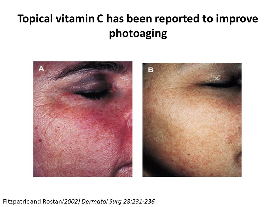 Topical vitamin C has been reported to improve photoaging Fitzpatric and Rostan(2002) Dermatol Surg 28:231-236