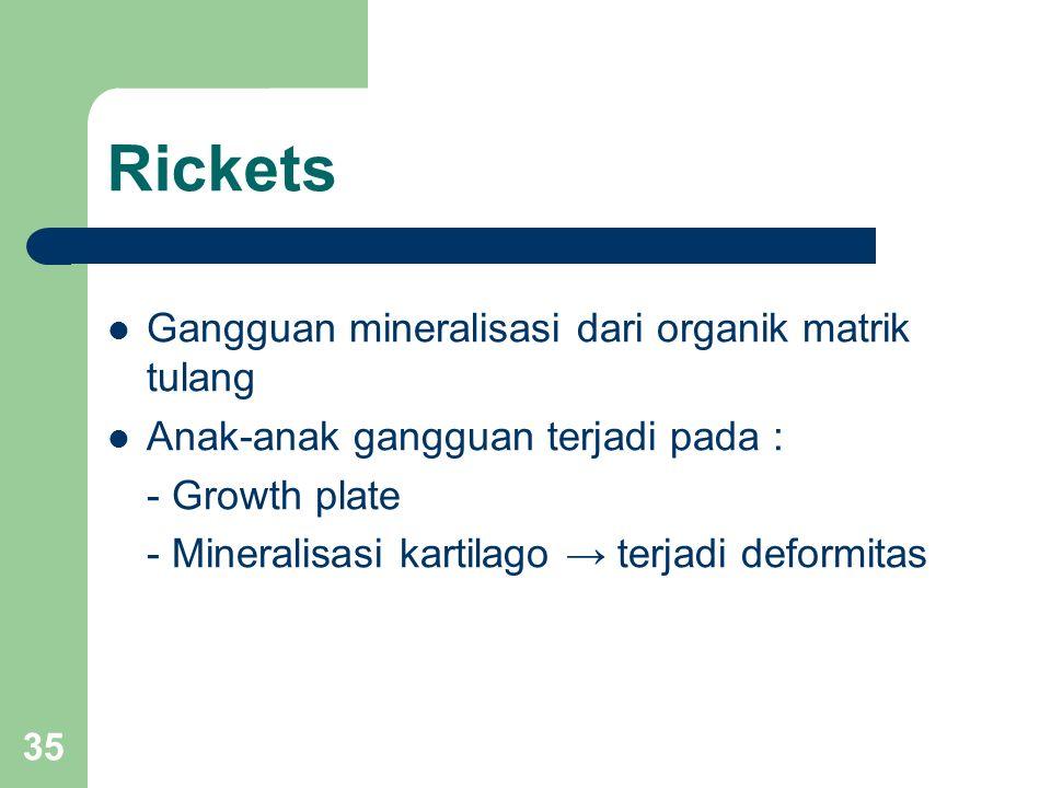 35 Rickets Gangguan mineralisasi dari organik matrik tulang Anak-anak gangguan terjadi pada : - Growth plate - Mineralisasi kartilago → terjadi deformitas