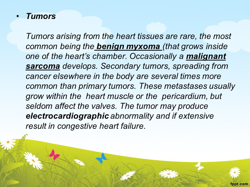 Tumors Tumors arising from the heart tissues are rare, the most common being the benign myxoma (that grows inside one of the heart's chamber.