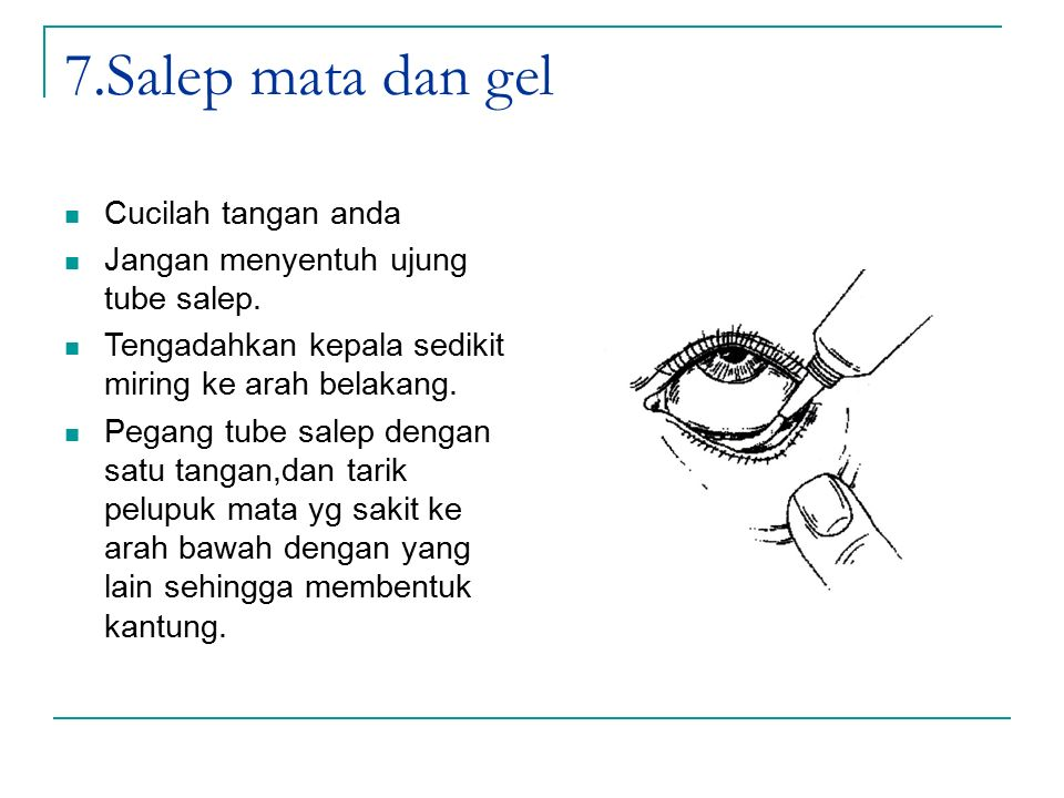 7.Salep mata dan gel Cucilah tangan anda Jangan menyentuh ujung tube salep. Tengadahkan kepala sedikit miring ke arah belakang. Pegang tube salep deng