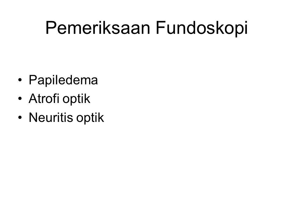 Pemeriksaan Fundoskopi Papiledema Atrofi optik Neuritis optik