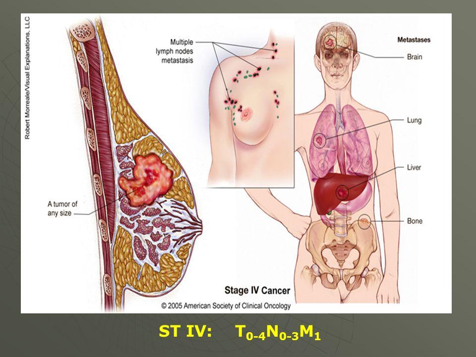 ST IV: T 0-4 N 0-3 M 1