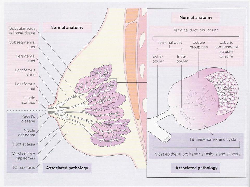 USA:   Mammografi + CBE setiap tahun: sejak 1963   Skrining usia > 50 tahun Angka kematian 25 – 30 %   2003 211.300 kasus bari invasive 55.700 kasus karsinoma duktal insitu Rimer BK.