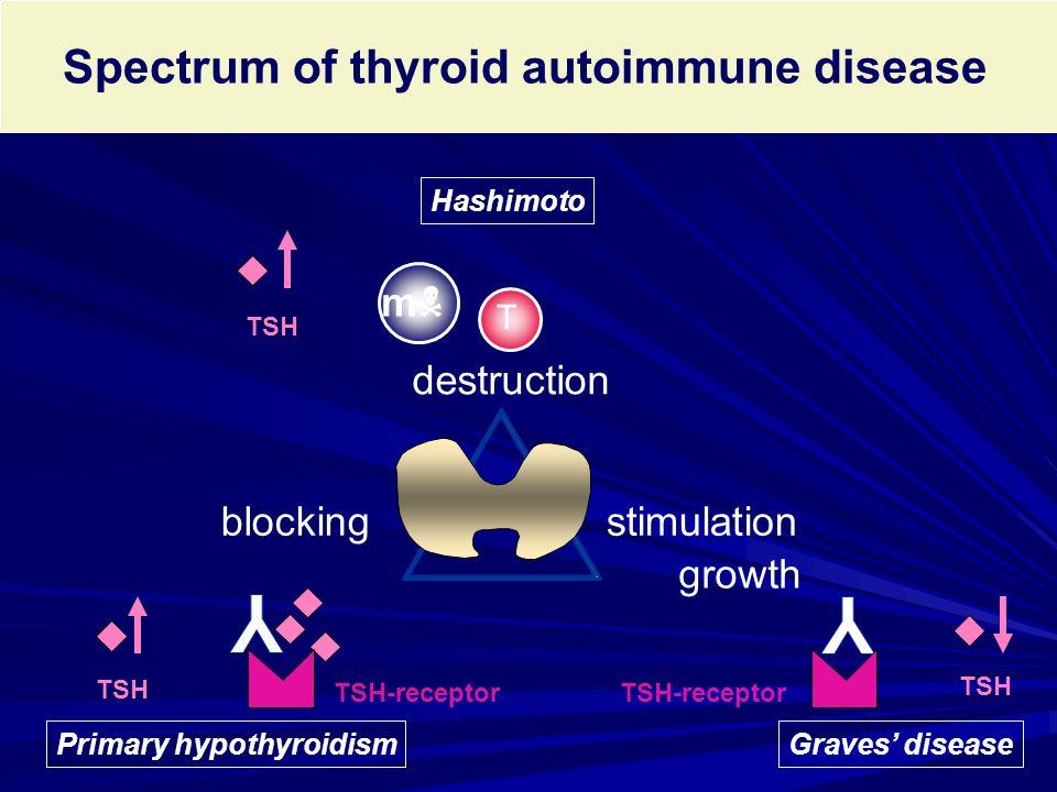 Spectrum of thyroid autoimmune disease stimulationblocking TSH-receptor growth TSH destruction T mm TSH Hashimoto Graves' disease TSH-receptor TSH P
