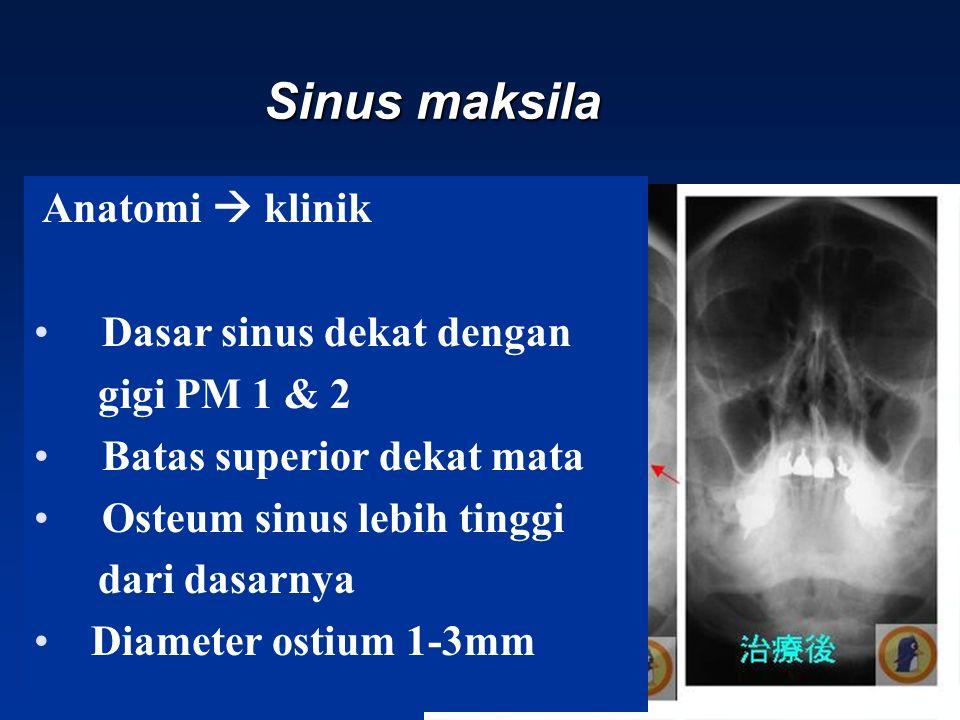 Sinus maksila Anatomi  klinik Dasar sinus dekat dengan gigi PM 1 & 2 Batas superior dekat mata Osteum sinus lebih tinggi dari dasarnya Diameter ostium 1-3mm