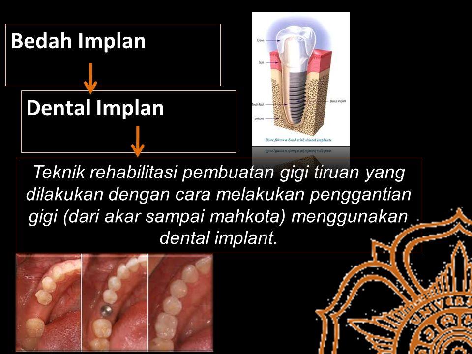 Bedah Implan Dental Implan Teknik rehabilitasi pembuatan gigi tiruan yang dilakukan dengan cara melakukan penggantian gigi (dari akar sampai mahkota) menggunakan dental implant.