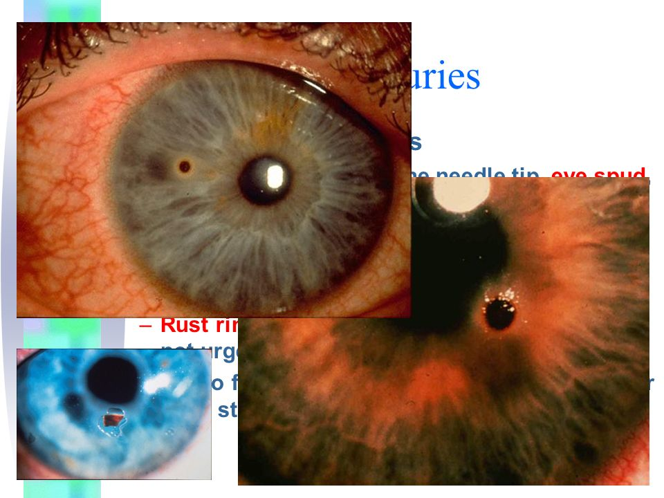 Traumatic Eye Injuries Corneal Foreign Bodies –May be removed with fine needle tip, eye spud, or eye burr after topical anesthetic applied –Then treat as a corneal abrasion –Deep corneal stoma FB or those in central visual axis require ophtho consult for removal –Rust rings can be removed with eye burr, but not urgent –Optho follow up in 24 hours for residual rust or deep stromal involvement