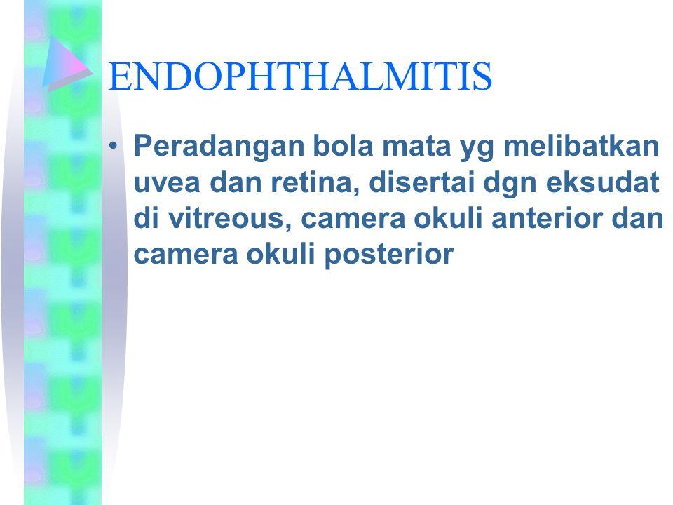ENDOPHTHALMITIS Peradangan bola mata yg melibatkan uvea dan retina, disertai dgn eksudat di vitreous, camera okuli anterior dan camera okuli posterior