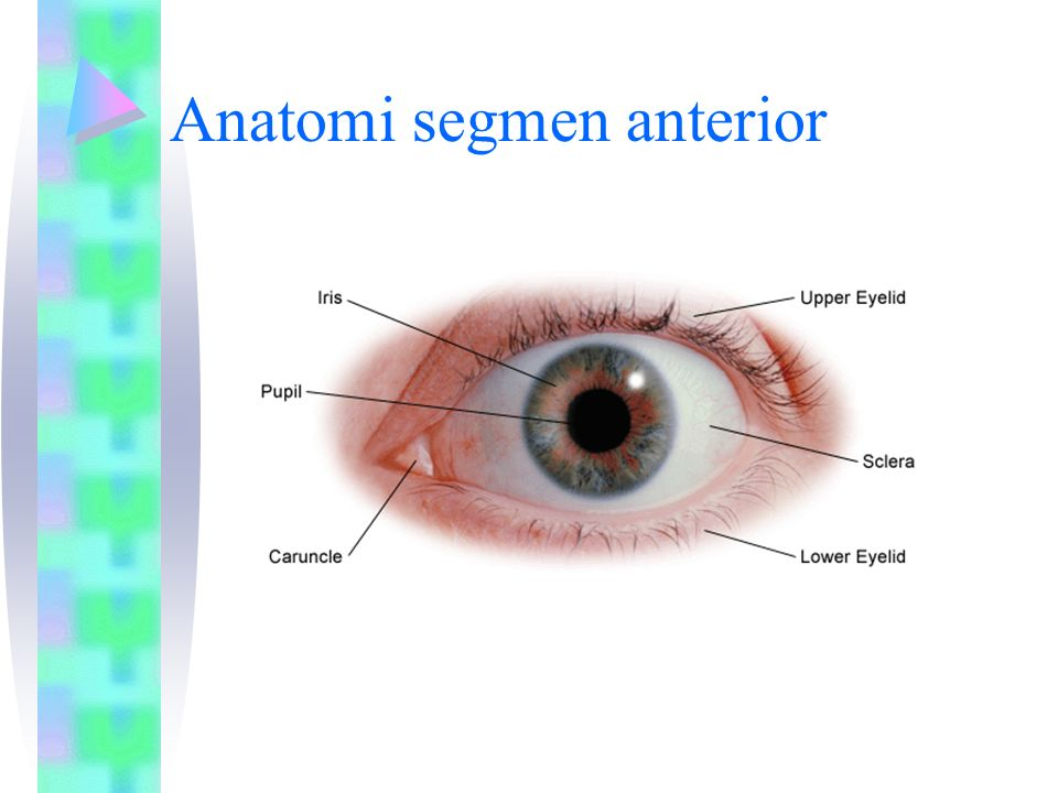 UVEITIS Inflammation of the uveal tract Signs Injection Flare Keratic precipitates Posterior synechias iris nodules