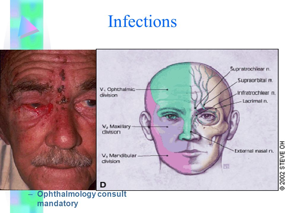 Herpes Zoster Ophthalmicus –Shingles with trigeminal distribution, ocular involvement, concurrent iritis – Pseudodentrite Mucous corneal plaque with epithelial erosion –Treatment: Acyclovir Topical antivirals Warm compresses Oral analgesics or cycloplegics for pain relief –Ophthalmology consult mandatory Infections