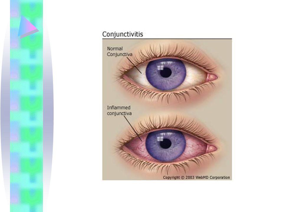Pemeriksaan Tajam penglihatan menurun tes fluorescein (+)  defek Pada infeksi berat  hypopion