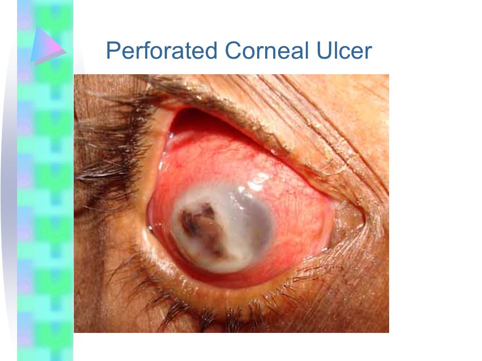 Perforated Corneal Ulcer