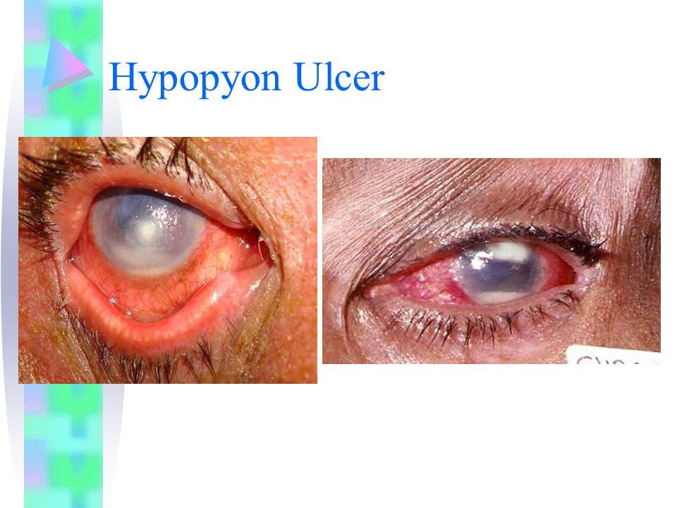 Hypopyon Ulcer